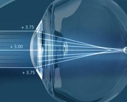 Супер ЛАСИК (Super LASIK) — метод лазерной коррекции