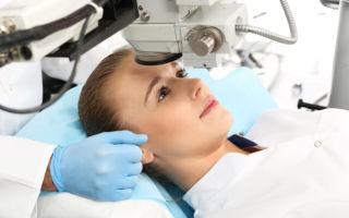 Лазерная коррекция зрения и беременность